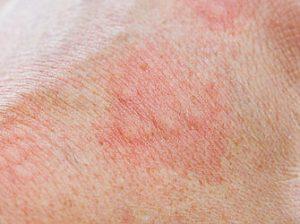 Schüssler Salze Neurodermitis